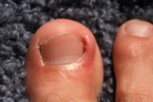 Example of an Ingrown Toenail