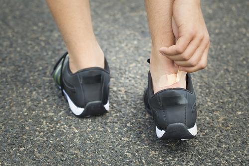 Blister on a runners heel