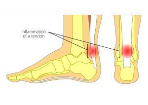 Achiilles Tendonitis Heel Pain
