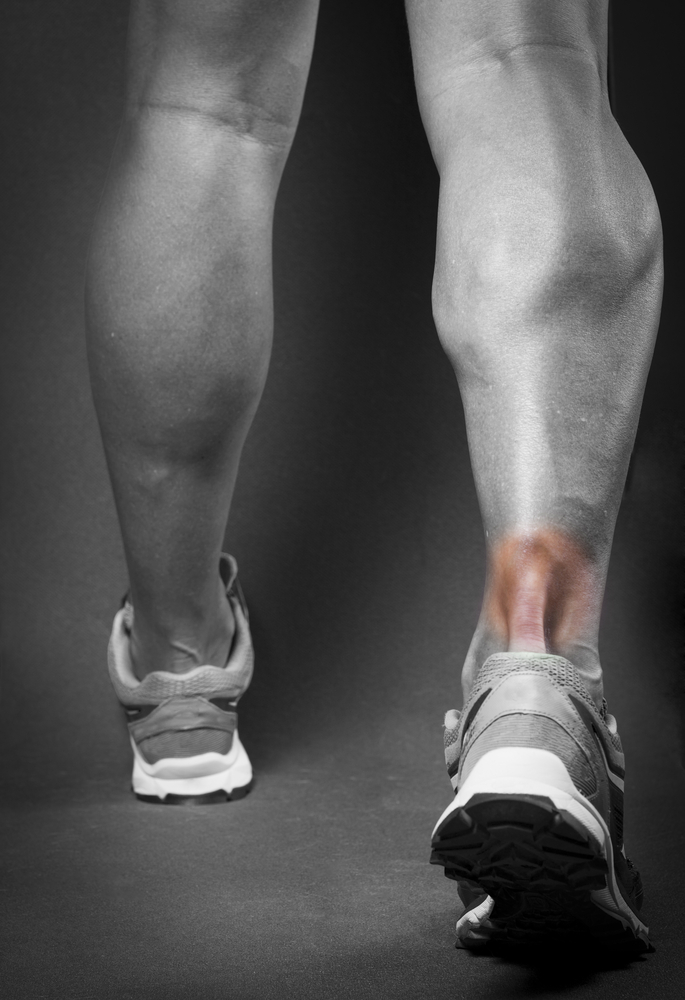 Achilles Tendonitis on Runner