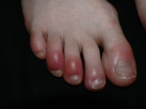 Chilblains toes