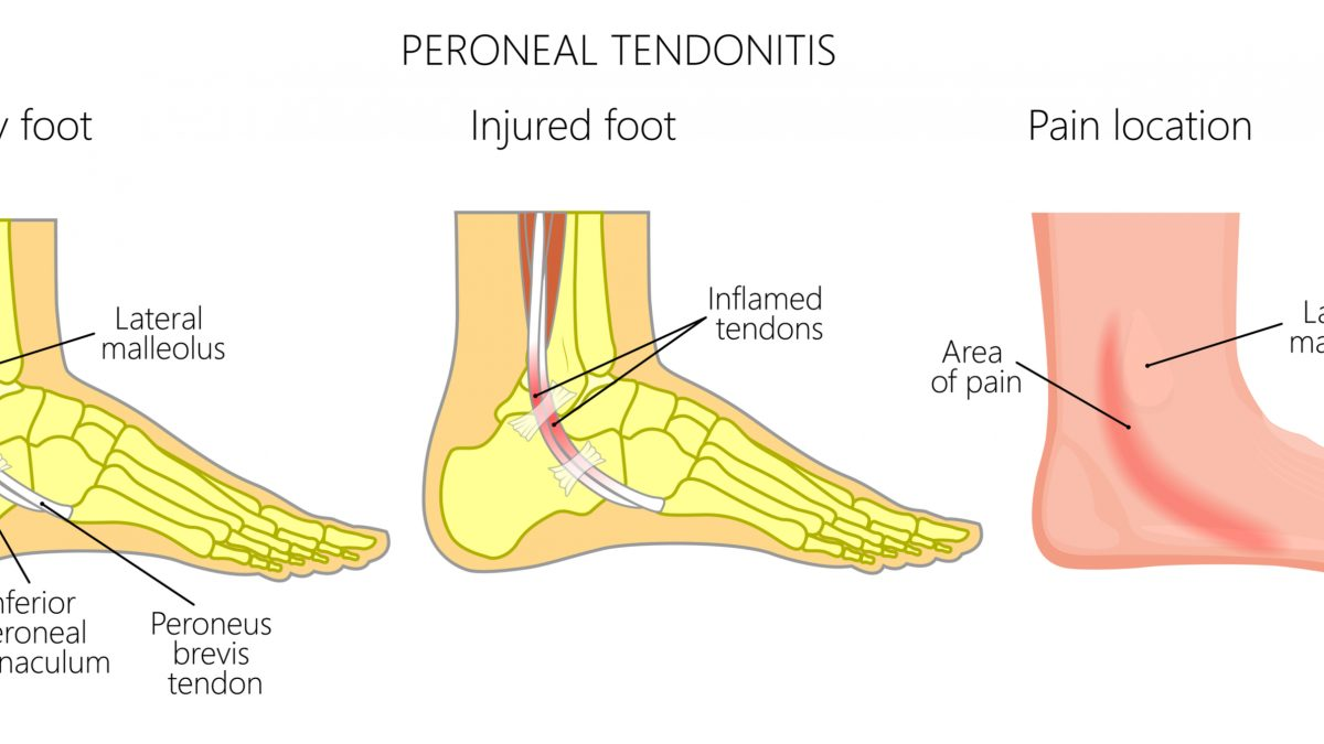 Peroneal Tendonitis Causes Symptoms And Treatment Options