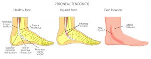 peroneal tendon tear