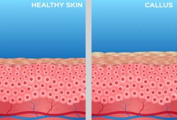 Callused skin vs normal skin